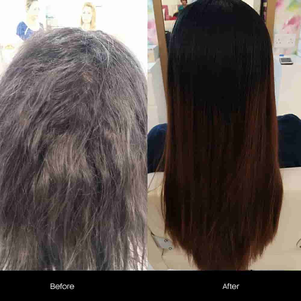 botox hair before after