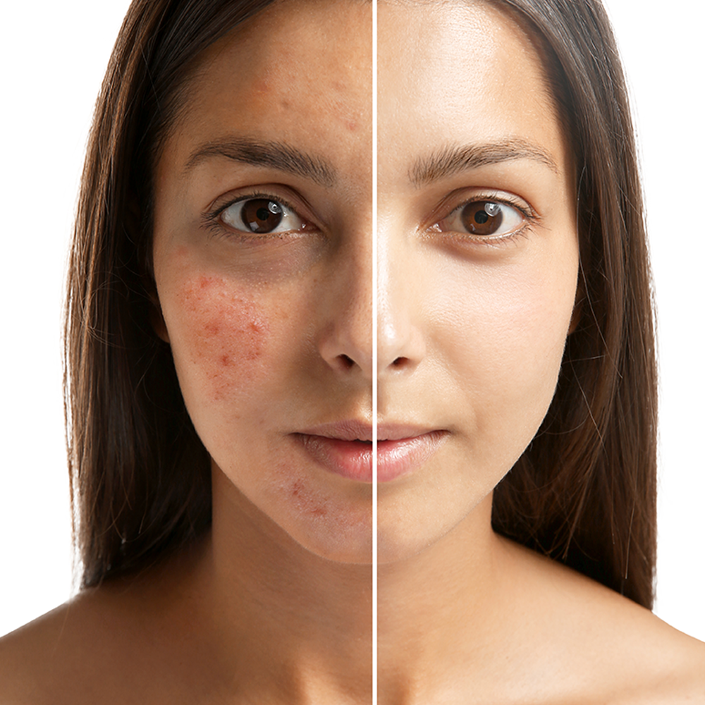 Acne Treatment Dubai
